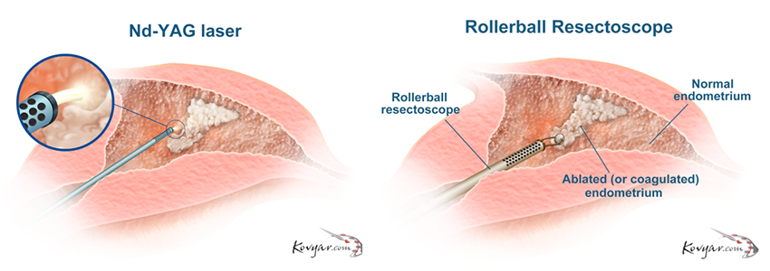 Diagrams of the Nd-YAG Laser and the Rollerball Resectoscope treatments