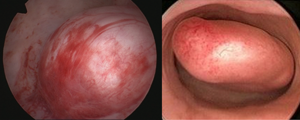 Diagnostic Hysteroscopy images of someone with PMB