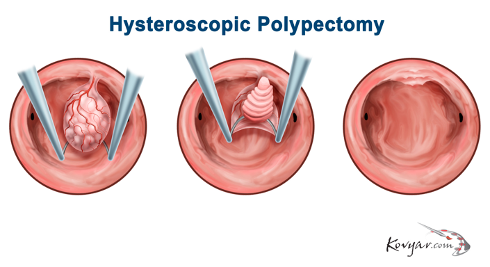 Hysteroscopic Polypectomy Treatment Procedure Diagram