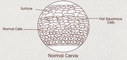 Diagram of normal healthy cervix cells.