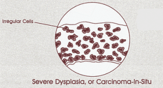 Diagram of severe dysplasia or carcinoma in situ in cervix cells