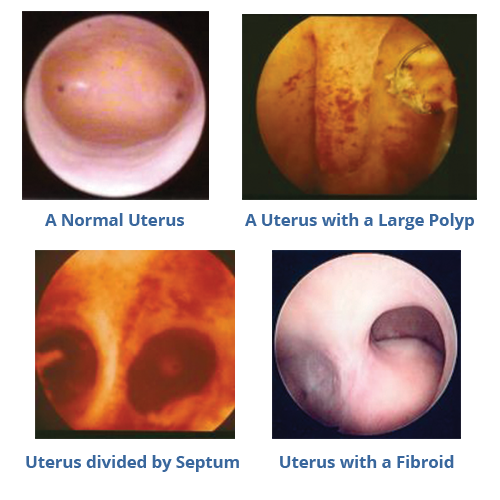 Hysteroscopic images comparing a normal uterus to a uterus with a large polyp to a uterus divided by septum to a uterus with a fibroid.