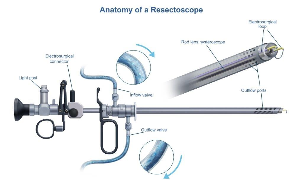 Anatomy of the Resectoscope Diagram