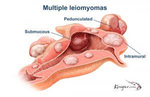 multiple leiomyomas