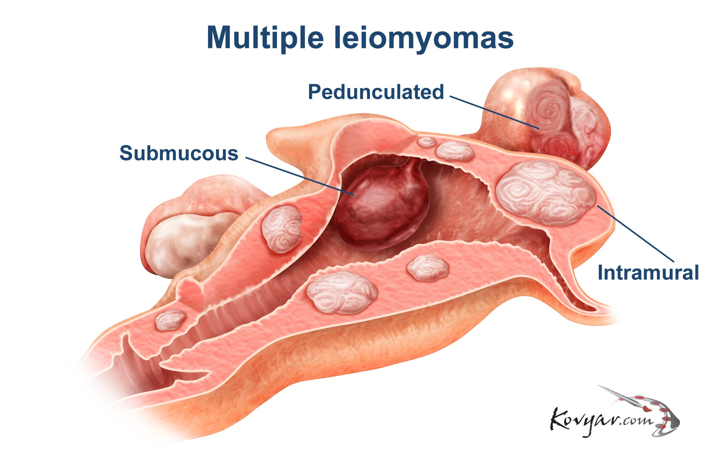 Diagram of Multiple Leiomyomas