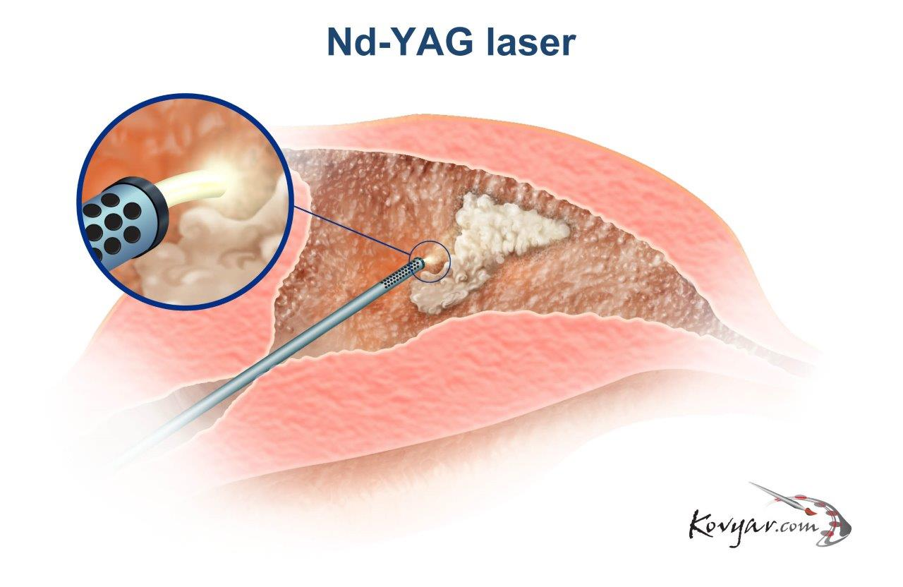 Nd-YAG Laser Procedure Diagram