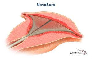 NovaSure Procedure Diagram