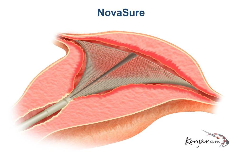 NovaSure Procedure Diagram