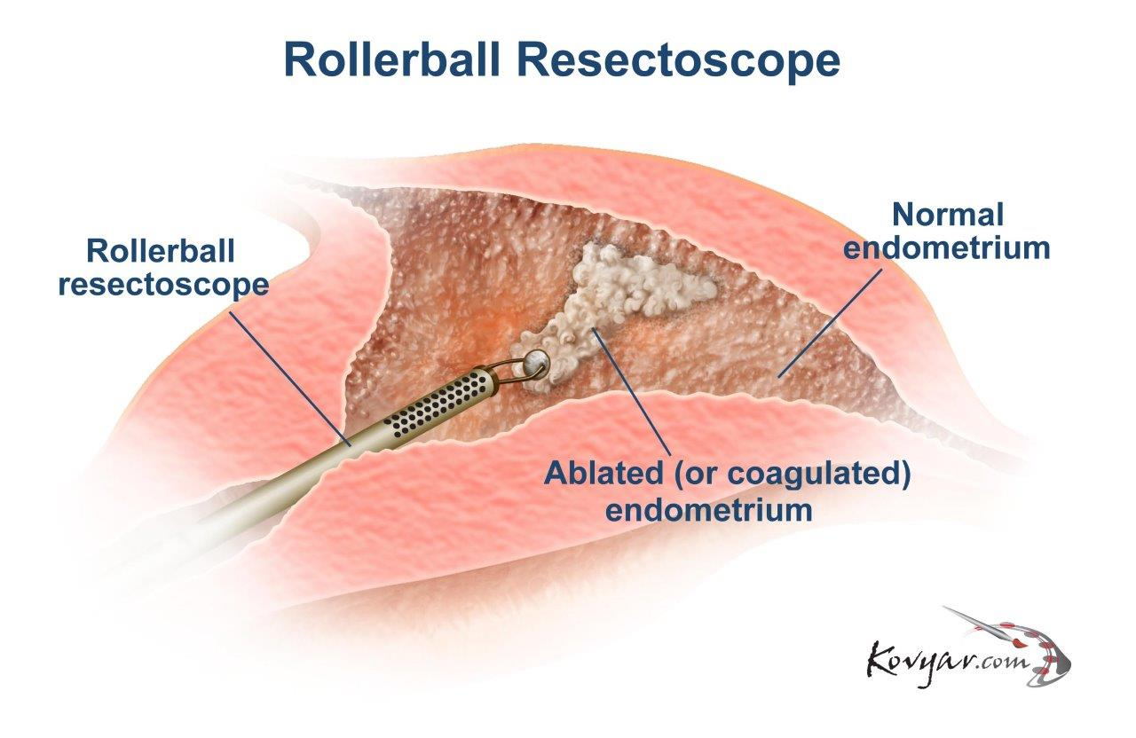 Rollerball Resectoscope Procedure Diagram