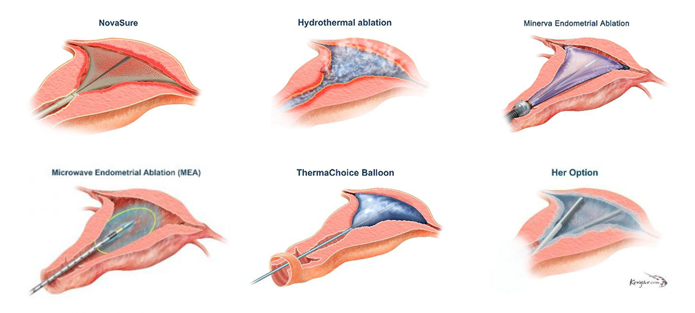 Diagrams of the six Endometrial Ablation Procedures: NovaSure, Hydrothermal Ablation, Minerva Endometrial Ablation, Microwave Endometrial Ablation (MEA), ThermaChoice Balloon, and Her Option