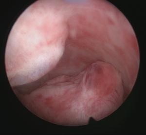 Hysteroscopy image of an Edometrial Polyp