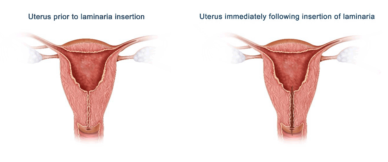 Diagrams of Uterus prior to laminaria insertion and Uterus immediately following insertion of laminaria