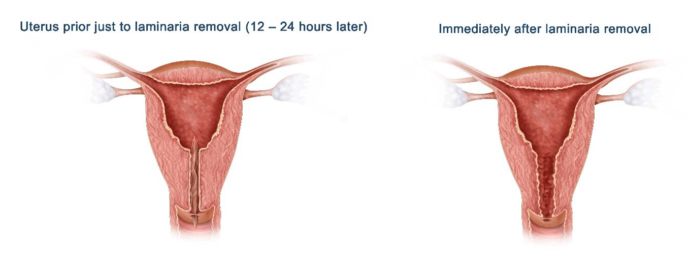 Diagrams of Uterus prior just to laminaria removal (12 - 24 hours later) and Uterus immediately after laminaria removal