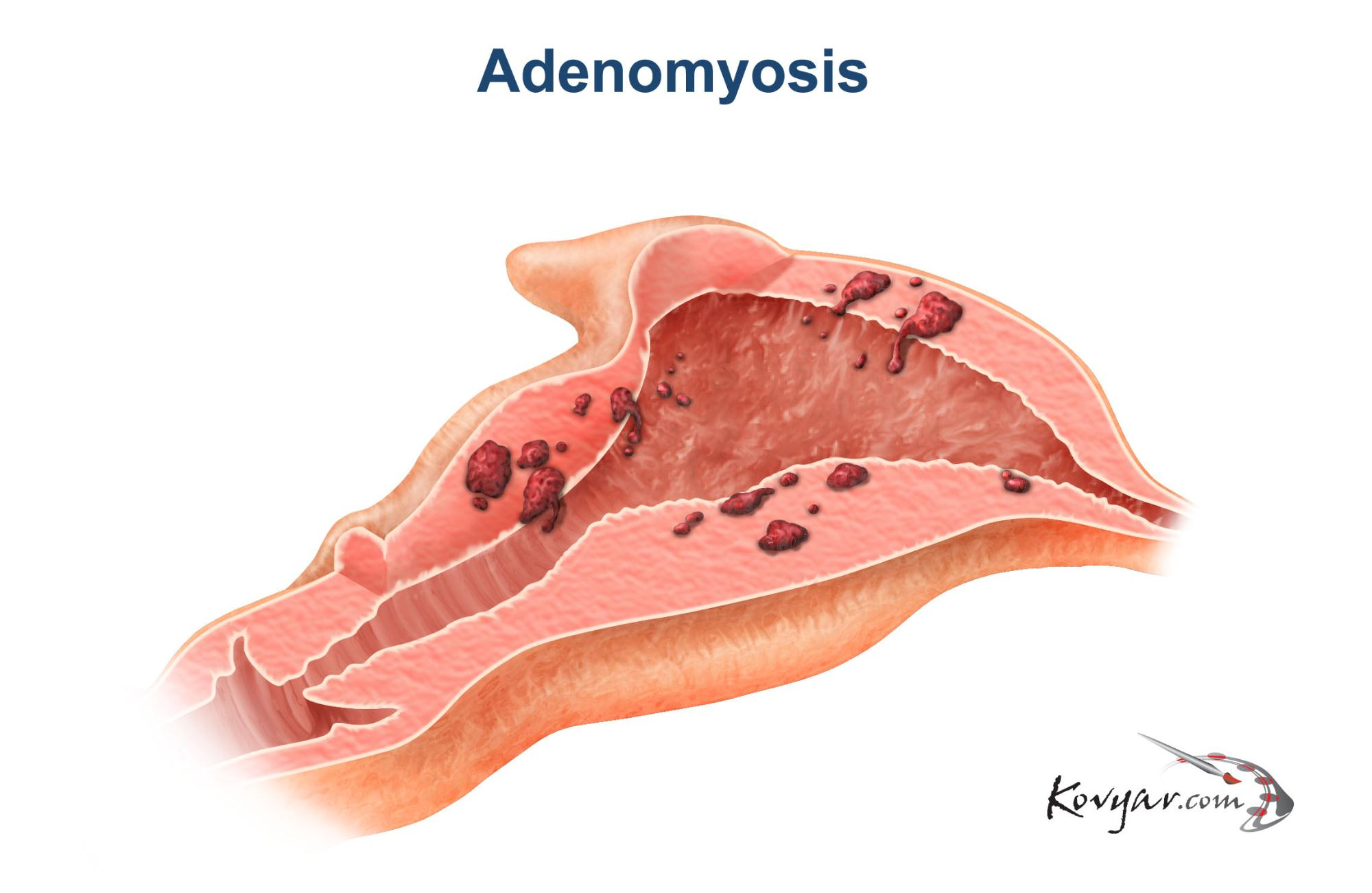 Diagram of a uterus with Adenomyosis