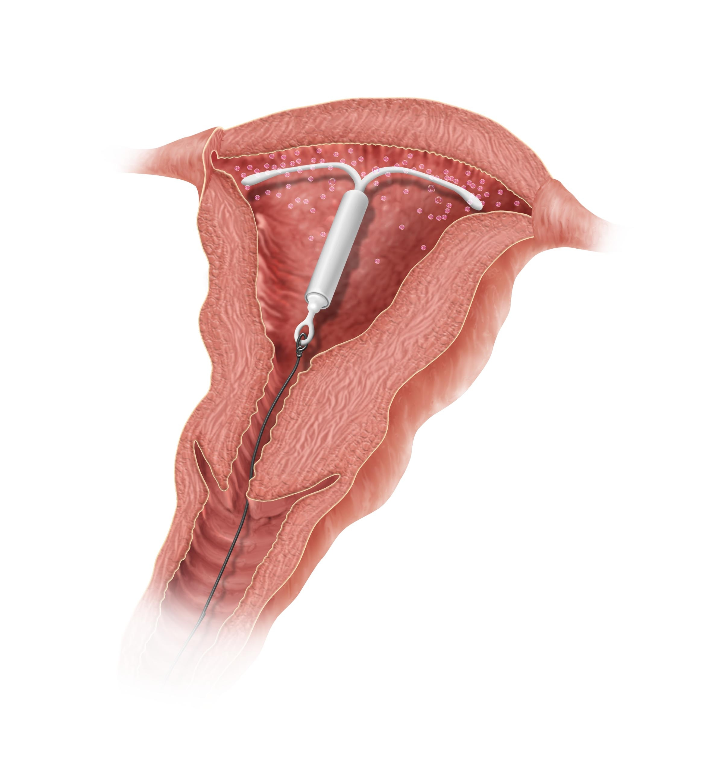 Mirena IUD Placement Diagram